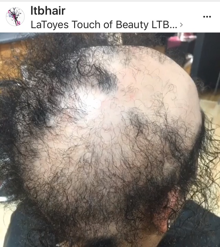 Hair Loss Specialist